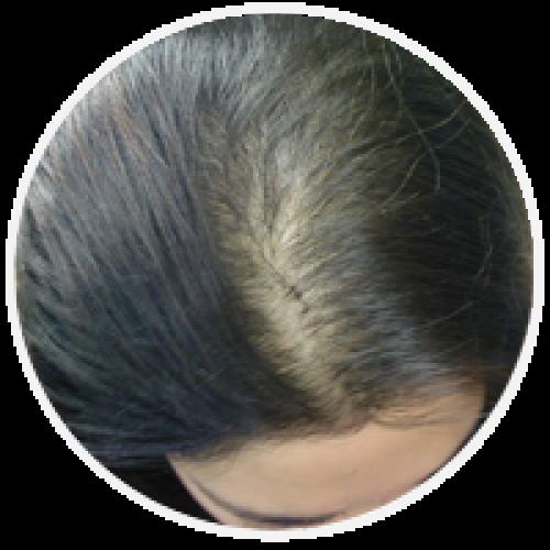 Redčenje las